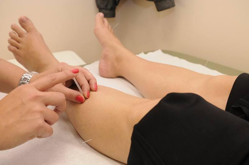 igłoterapia stosowana na nodze pacjentki